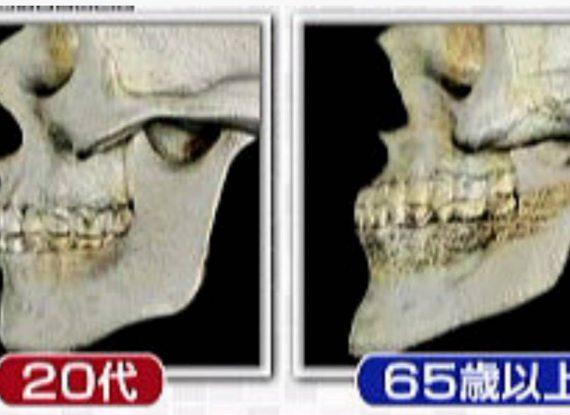 お顔のシワと骨密度。
